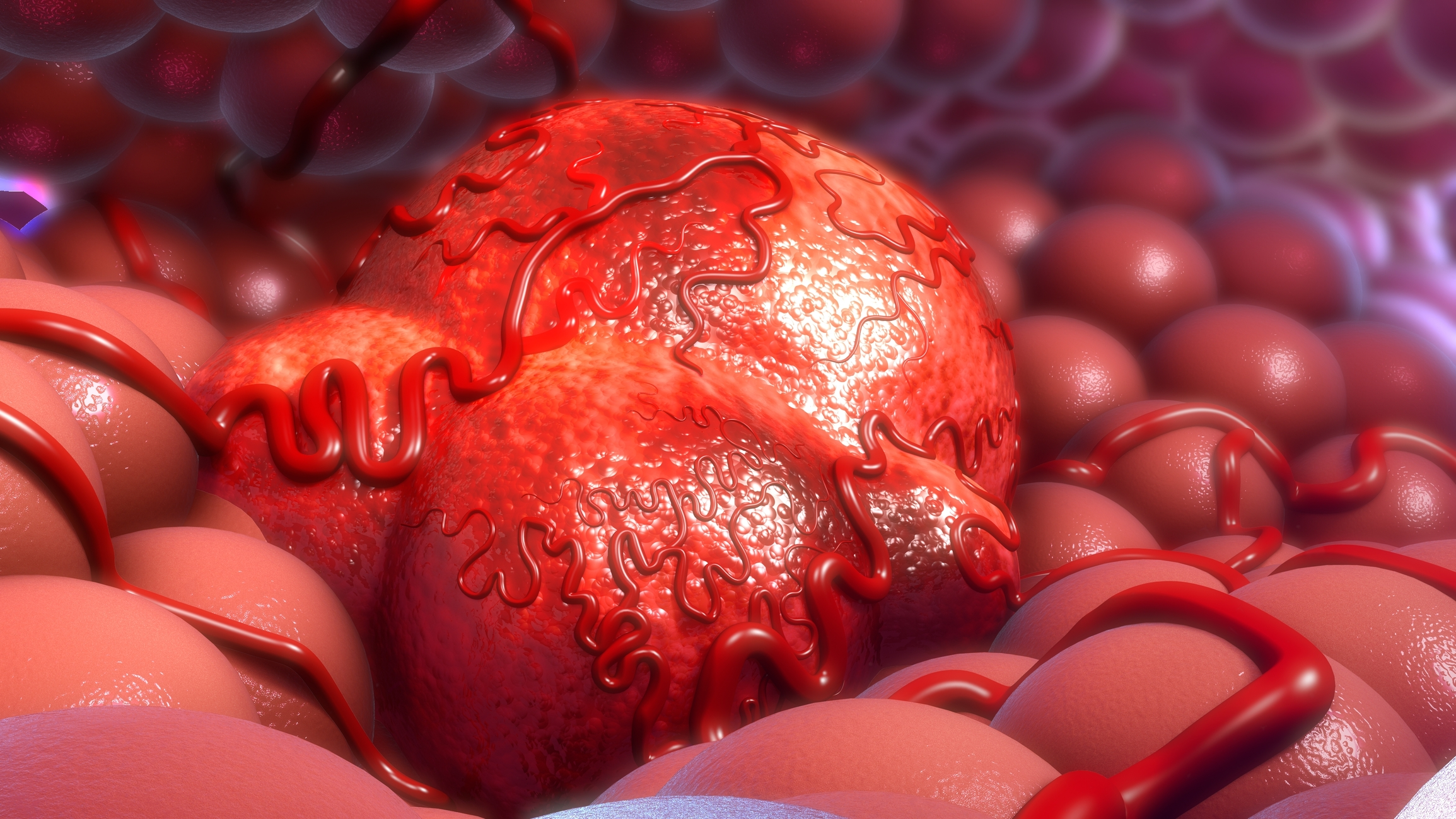 Krebs Tumor